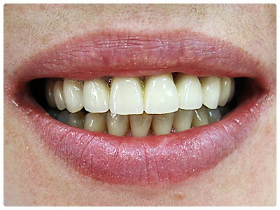 металлокерамика отбеливание зубов